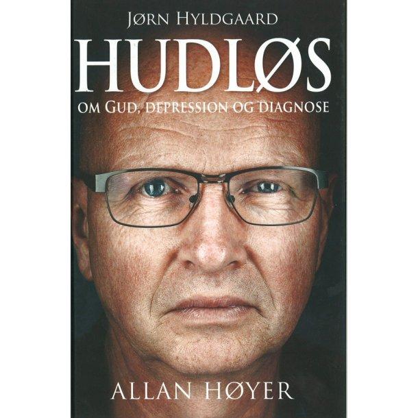 Hudløs - af Allan Høyer